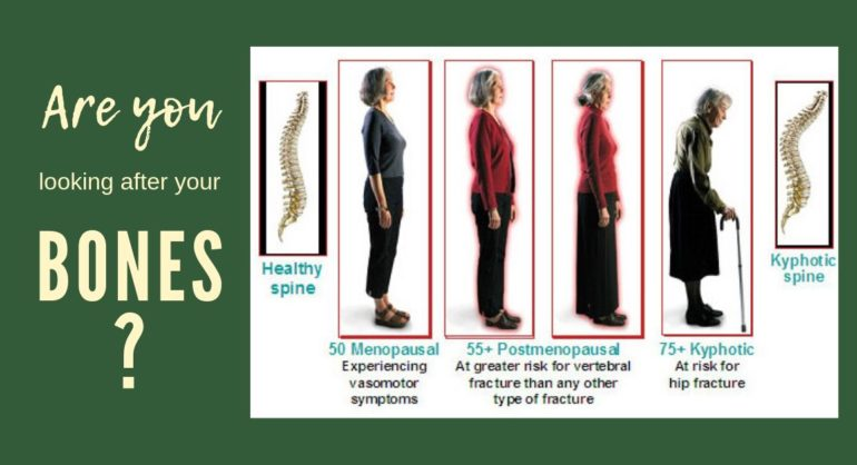 four ladies different ages with different posture from straight to bend over showing healthy and osteoporotic spine